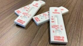 Новый экспресс-тест на COVID-19 от резидента «Сколково» зарегистрирован в РФ