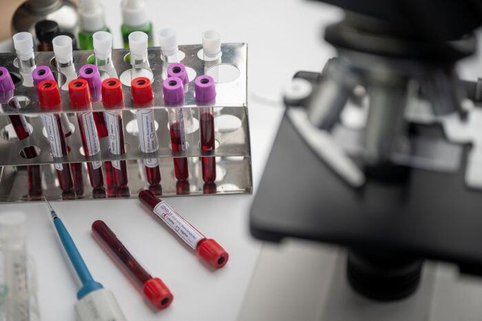 CDC проведут исследования на антитела к коронавирусу по всем США