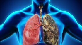 Уроки COVID-19: как не допустить новой эпидемии туберкулеза