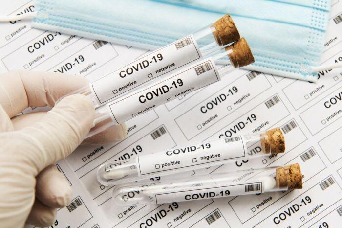 ФОМС разъяснил условия оплаты тестов на коронавирус из средств ОМС