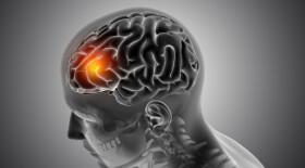 Пациенты с шизофренией умирают от COVID-19 почти в 3 раза чаще