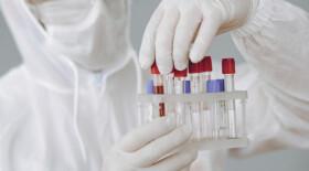 У пациентов с ВИЧ-инфекцией существует повышенный риск смерти от COVID-19